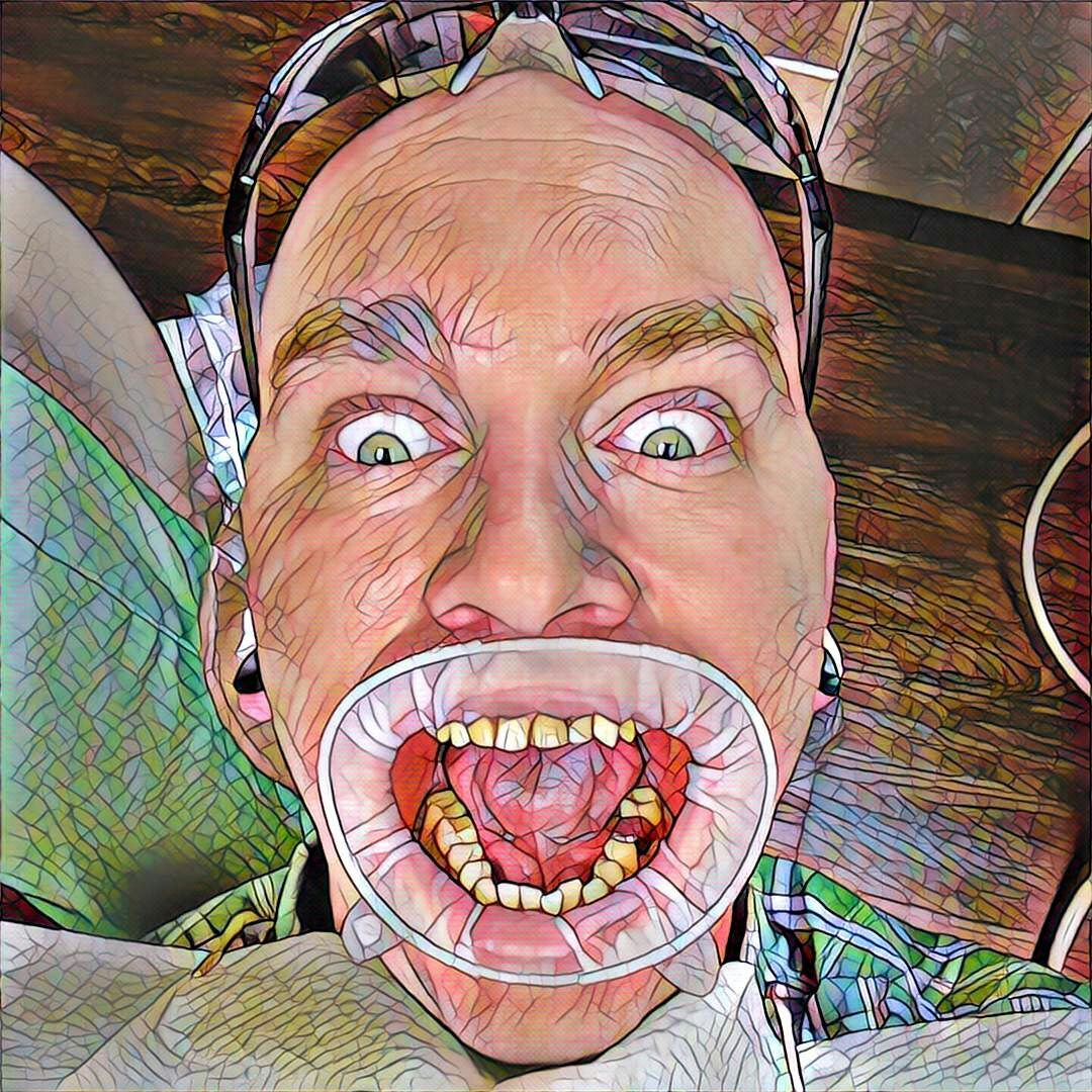 Me at the dentist with a Prisma filter